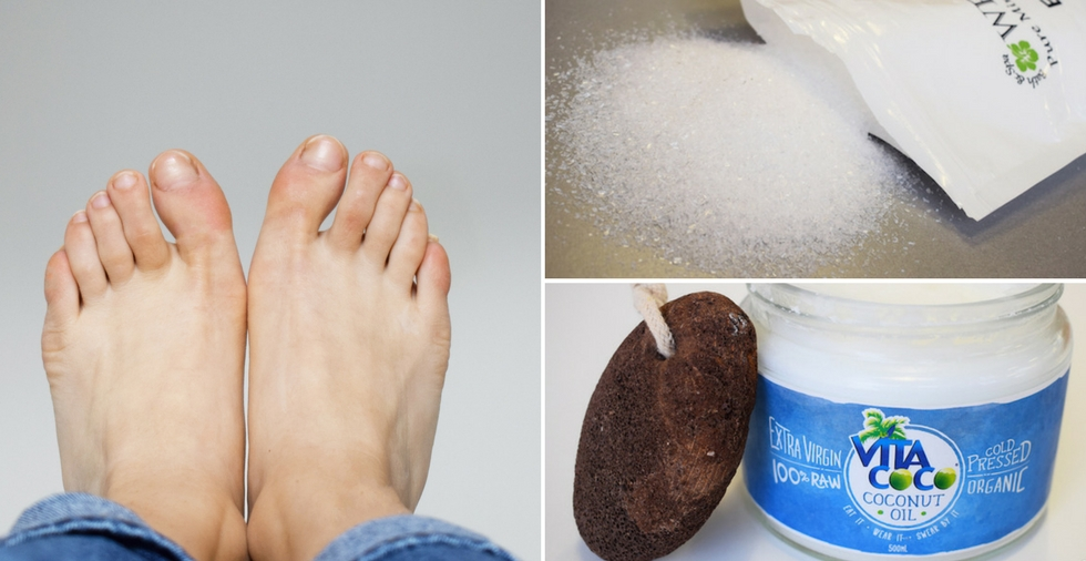best way to heal cracked skin between toes