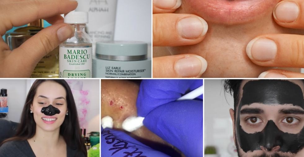 How To Get Rid Of Blackheads - FOR GOOD!