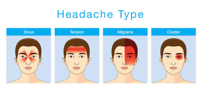 different types of headaches