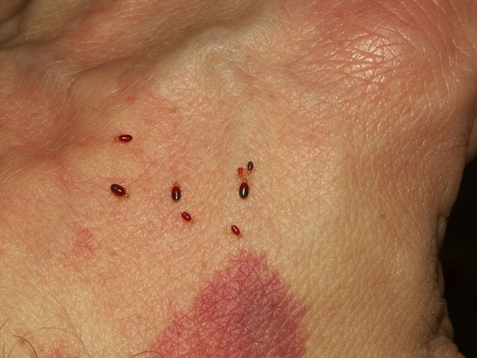 signs of bed bugs bites