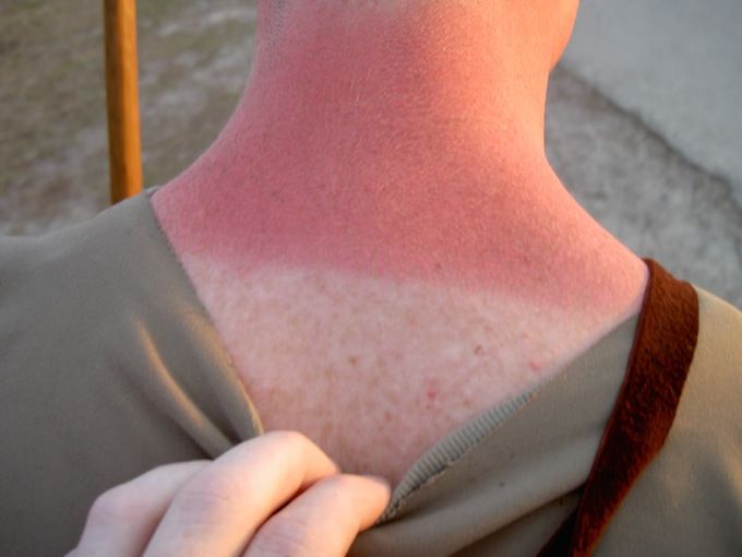 sunburnt neck