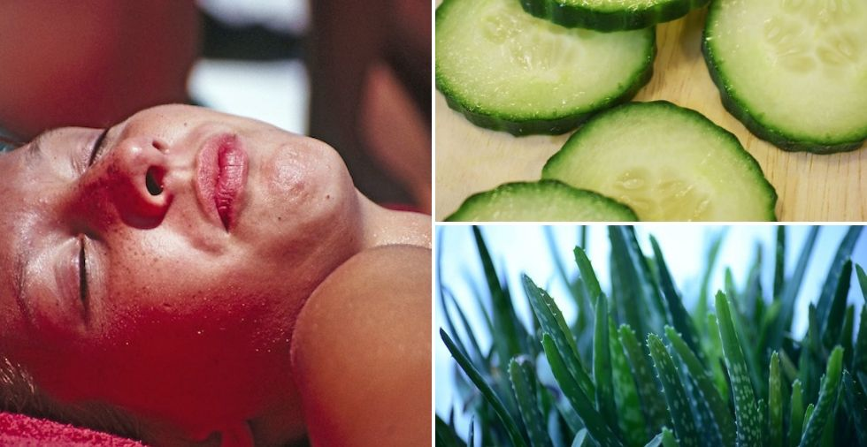 How To Get Rid Of Sunburn OVERNIGHT (14 Clever Home Remedies To Try)