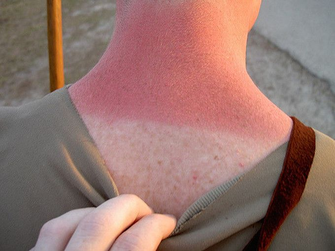 burnt neck
