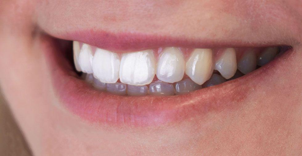 23 Surprising Ways To Whiten Your Teeth… & KEEP Them White